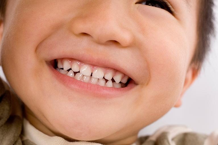 永久歯に生え変わるころ